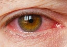 ontstoken oog